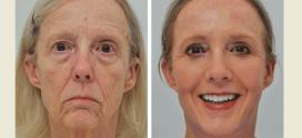 موثرترین روش ها برای درمان افتادگی پوست صورت