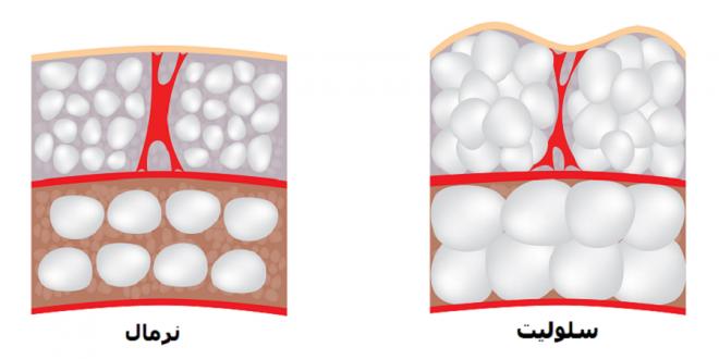چند راه ساده برای کمک به درمان سلولیت
