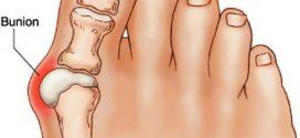 علت بیرون زدن استخوان شست پاچیست