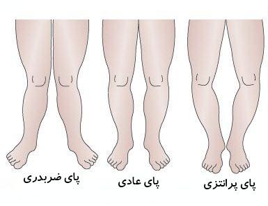 پاهای پرانتزی و ضربدری